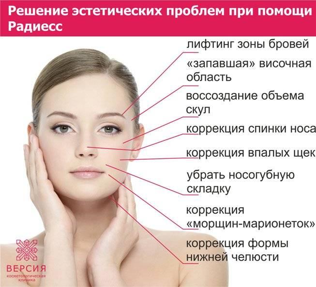 Радиесс подтяжка лица